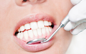 Gum Disease Treatment | Manchester Periodontal Therapy